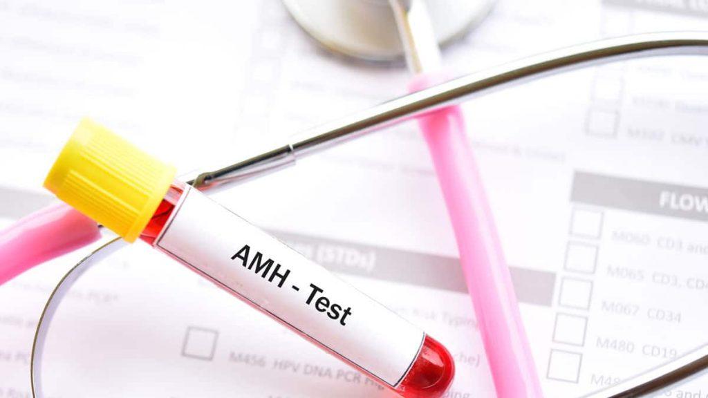 антимюлеров-хормон