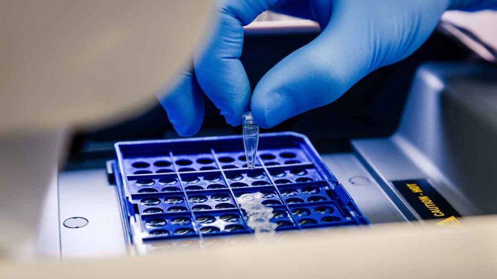 митохондриална-днк-сперматозоиди-изследване